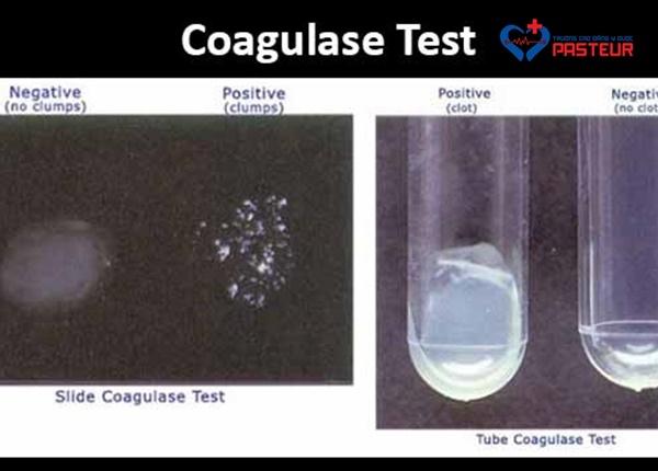 Catalase là gì