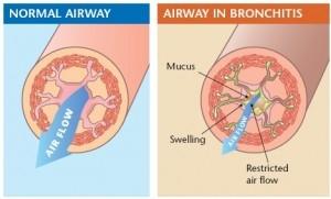 Emphysema là gì