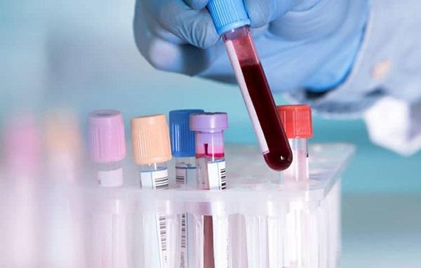 Mch trong xét nghiệm máu là gì